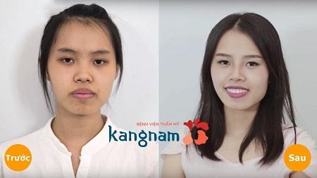 Khác biệt sau phẫu thuật hàm móm tại Kangnam
