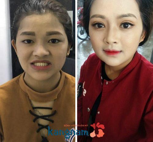 Kết quả chỉnh hàm móm tại Kangnam