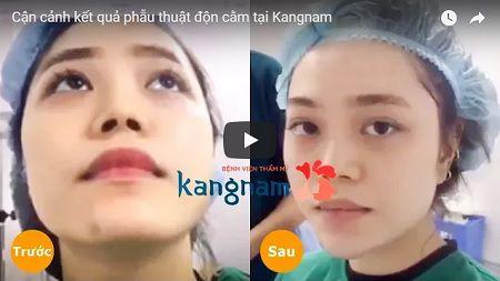 [CLICK XEM] Video livestream khách hàng thực tế sau độn cằm Hàn Quốc
