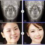 Gọt mặt không dành cho người yếu tim? Trực tiếp chuyên gia Hàn Quốc giải đáp