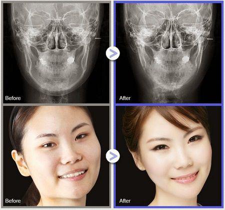 Phương pháp gọt mặt V-line 3D mang đến bạn khuôn mặt đẹp không góc chết