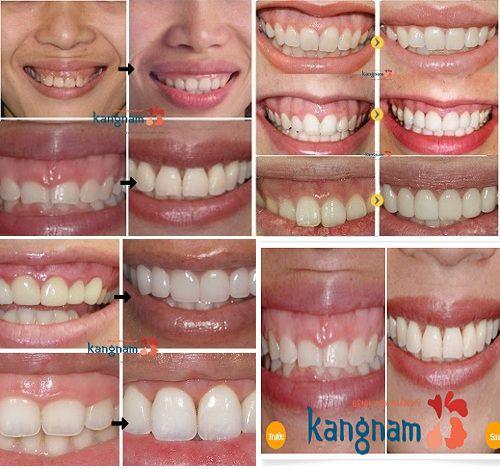 Kangnam địa chỉ phẫu thuật cười hở lợi cho hàng ngàn khách hàng