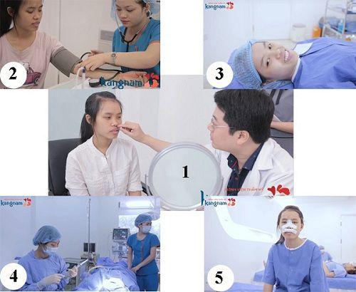 Quy trình phẫu thuật cười hở lợi tại Kangnam
