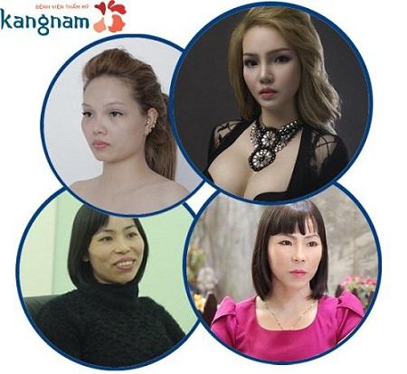Tuyết DJ sau phẫu thuật gọt mặt V line 3D tại Kangnam