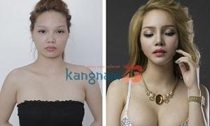 xinh đẹp sau thẩm mỹ hàm mặt
