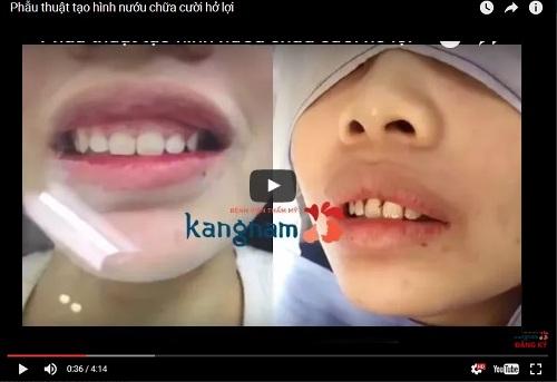Cận cảnh quá trình chữa cười hở lợi tại Kangnam