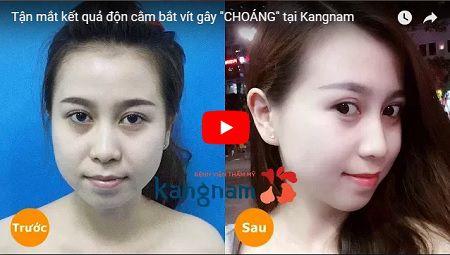 »»[TẬN MẮT CHỨNG KIẾN] Ca độn cằm BẮT VÍT an toàn chuẩn Hàn chỉ có tại BVTM Kangnam