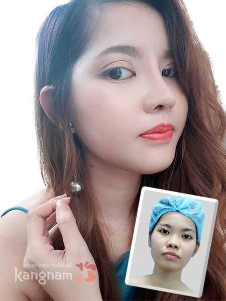 vu-cong-Hai-Ngoc-lot-xac-sau-tham-my-khuon-mat