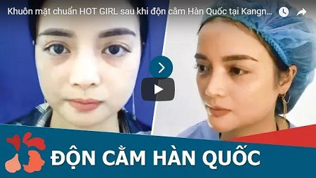 → [CLICK XEM] Cận cảnh ca độn cằm giúp bạn trở thành HOT GIRL sau 30 phút thực hiện