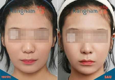 Khuôn mặt V-line là gì 4