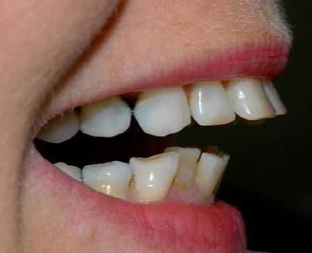 Răng vẩu có di truyền không