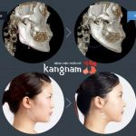 Phẫu thuật toàn diện khuôn mặt đẹp tự nhiên theo phong cách Hàn Quốc