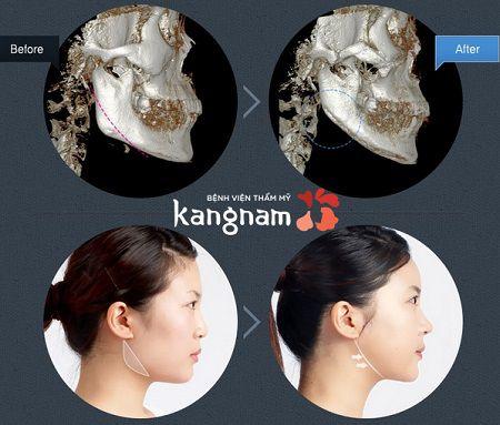 phẫu thuật toàn diện khuôn mặt1