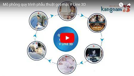 Cận cảnh ca phẫu thuật toàn diện khuôn mặt V-line 3D