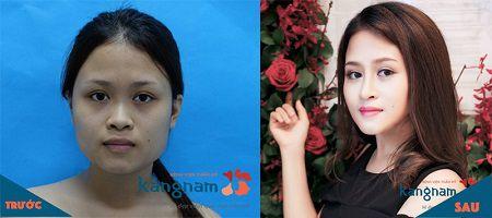 phẫu thuật toàn diện khuôn mặt2