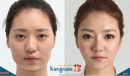 phẫu thuật toàn diện khuôn mặt3