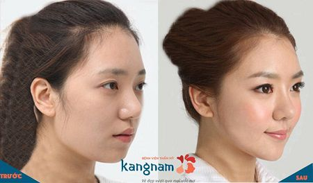 phẫu thuật toàn diện khuôn mặt4