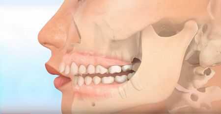 Tại sao răng lại vổ 2