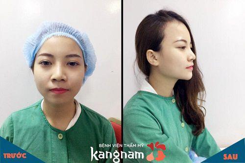 So sánh hình ảnh trước và sau khi tiêm filler