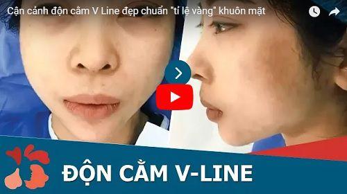 Xem trực tiếp video cận cảnh ca độn cằm Hàn Quốc tại Kangnam