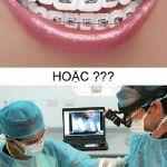 Hàm vổ nên niềng răng hay phẫu thuật hàm?