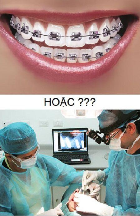 Hàm vổ nên niềng răng hay phẫu thuật hàm?1