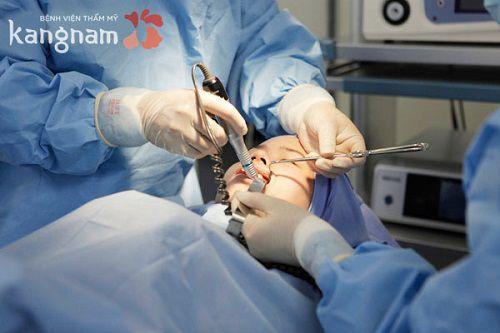 Phẫu thuật gọt mặt Hàn Quốc có hại không?1