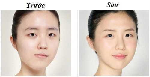 Cách khắc phục mặt lệch 2