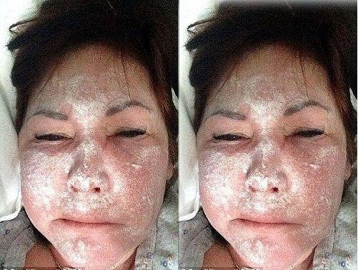 Tiêm botox thon gọn mặt có hại không