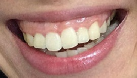 Bị cười hở lợi phải làm sao để khắc phục thưa bác sĩ?