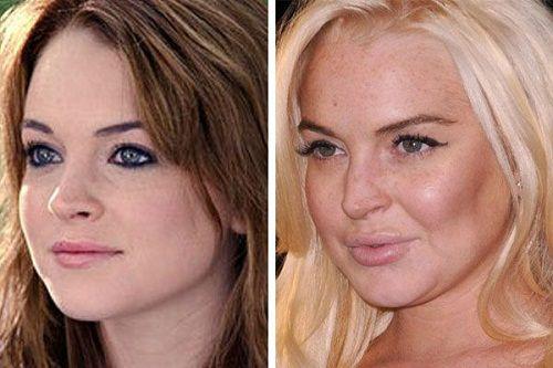 Tiêm botox có hại không 1