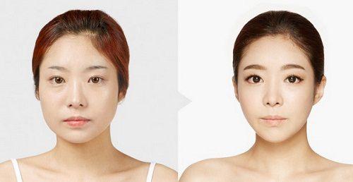 tiem-botox-co-hai-khong-2