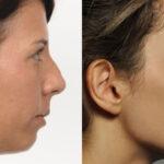 Mặt lưỡi cày là gì? Cách biến mặt lưỡi cày thành mặt V- line