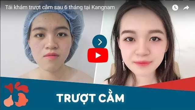 Video trượt cằm bao nhiêu tiền tại Kangnam