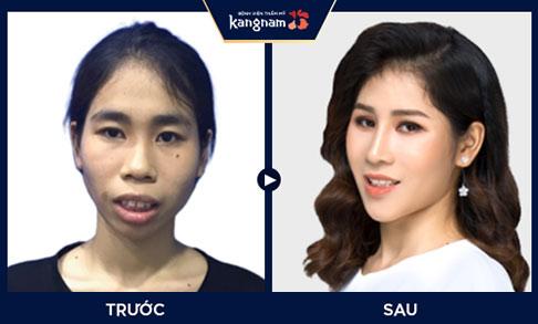 Hình ảnh khách hàng sau khi phẫu thuật thẩm mỹ tại Kangnam