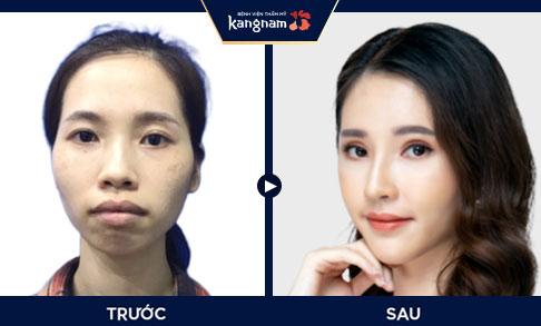 Hình ảnh khách hàng sau khi thẩm mỹ hàm mặt tại Kangnam