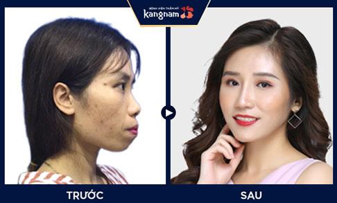 Trước và sau khi thẩm mỹ hàm mặt v line