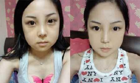 Phẫu thuật gọt mặt bao lâu mới hết sưng